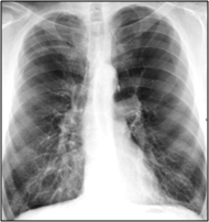 Severe Emphysema